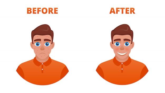 Wynik leczenia trądziku. smutny facet z trądzikiem staje się szczęśliwy bez.