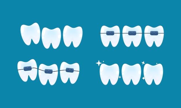 Wyrównanie zębów i korekta zgryzu za pomocą systemu aparatów ortodontycznych. styl kreskówki wektor.
