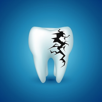 Ząb na niebiesko chory