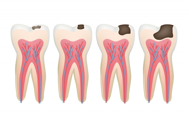Ząb próchniczy zgnilizna ambona procedura problemu stomatologicznego zdjęcia zęba korzeniowego