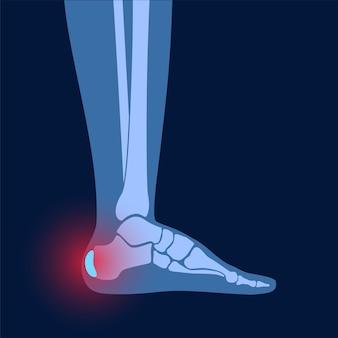 Zapalenie kaletki pięty. zapalona kaletka w ludzkiej kostce. choroba ścięgna achillesa i stopy