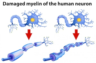 Zapalona mielina ludzkiego neuronu