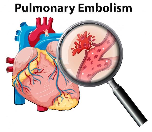 Zator tętnicy płucnej człowieka