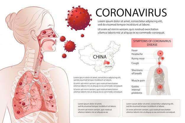 Zatrzymanie nowego koronawirusa (2019-ncov). ludzkie czynniki ryzyka objawów mers-cov. epidemia wirusa rozprzestrzenia się pandemią. badania zdrowotne i medyczne, badania przesiewowe. oddechowy, oddychanie. wektora infographic plansza