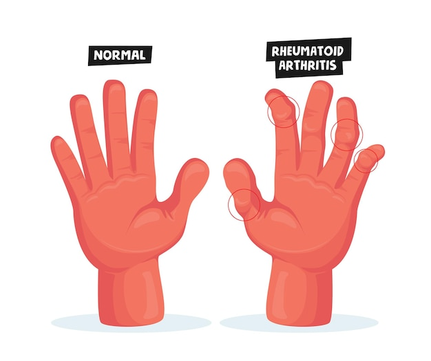 Zdrowe i chore ręce z reumatoidalnym zapaleniem stawów