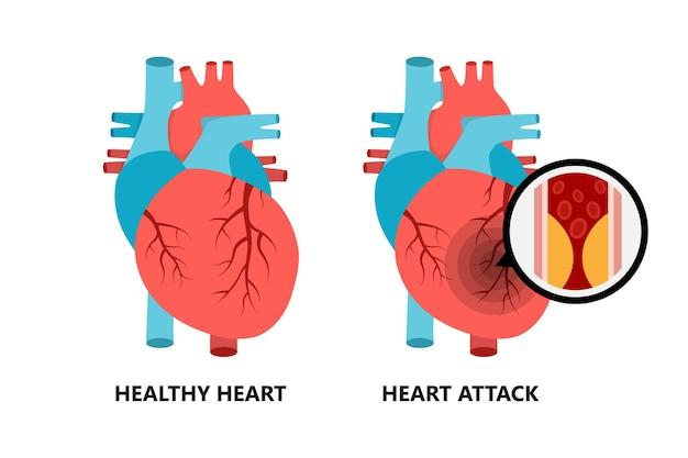 Zdrowe i niezdrowe serce serce z płytką miażdżycową płytka cholesterolu w naczyniach