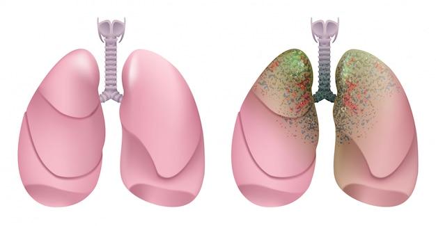 Zdrowe ludzkie płuca. układ oddechowy. płuco, krtań i tchawica zdrowej osoby. palacz układu oddechowego. rak płuc