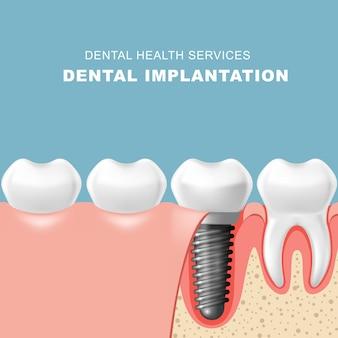 Zęby i implantat dentystyczny wprowadzany do dziąsła - implantacja zęba
