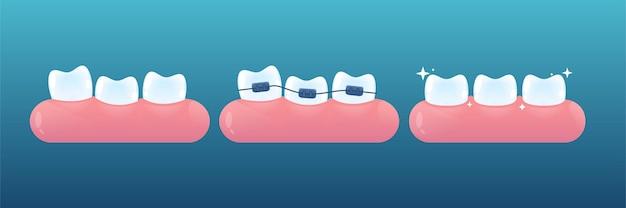 Zęby z aparatami ortodontycznymi lub bez. stomatologia ortodontyczna. koncepcja korekcji ortezy. styl kreskówki wektor