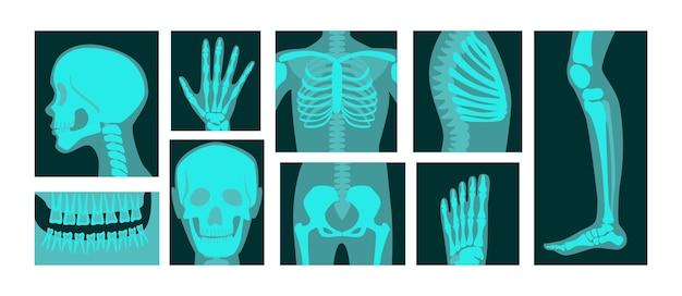 Zestaw ilustracji rentgenowskich części ciała ludzkiego