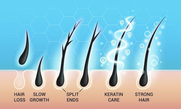 Zestaw różnych problemów z włosami i głębokich ilustracji zabiegów w salonie, widok makro łysiejącej skóry głowy i mieszków włosowych