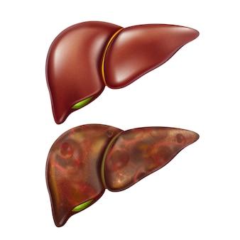 Zestaw zdrowych i niezdrowych organów wątroby człowieka