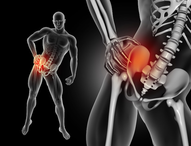 3d męska postać trzyma biodro w bólu