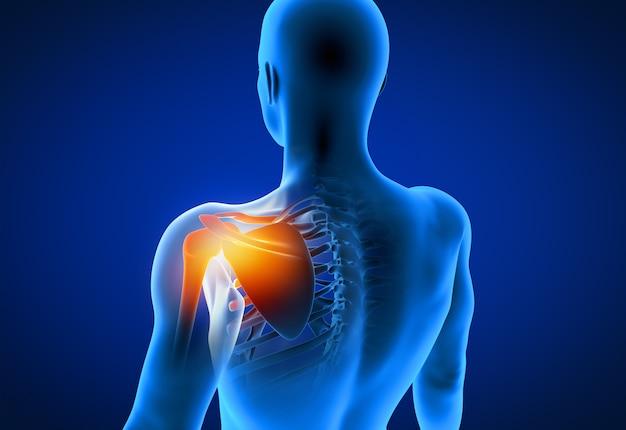 3d odpłacająca się ilustracja bolesny ramię