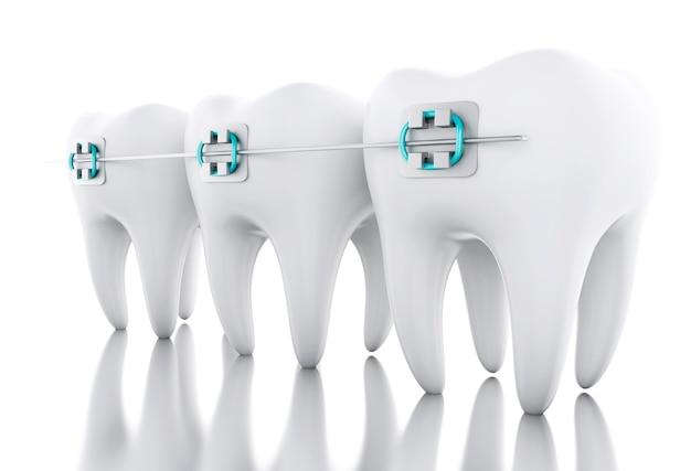 3d tooth z aparatami ortodontycznymi.