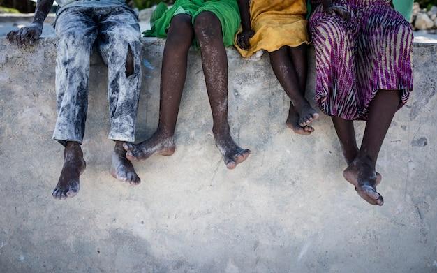 Afrykańscy dzieciaki siedzi na ścianie z nogami w dół