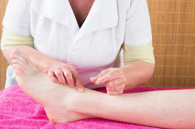 Akupunkturzysta stosuje igłę na nodze