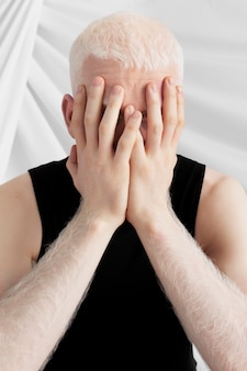 Albinos zakrywający twarz