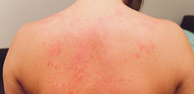 Alergiczna wysypka na ciele pacjenta.