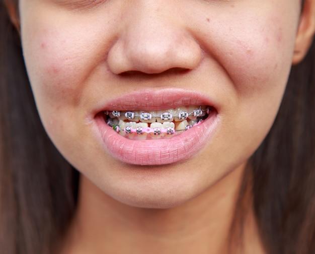 Aparat ortodontyczny do leczenia objawów rokowania