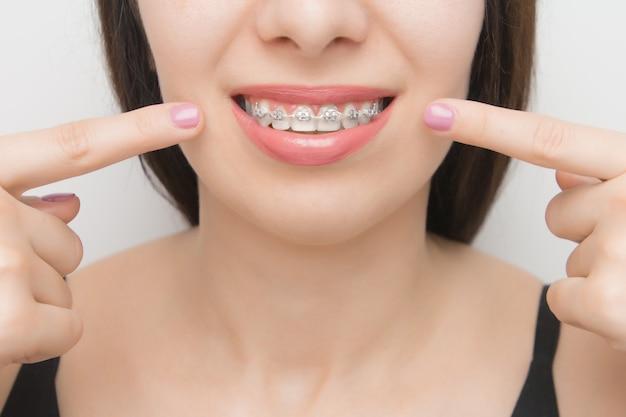 Aparat ortodontyczny w ustach szczęśliwej kobiety, który po wybieleniu pokazuje dwoma palcami na wspornikach zębów. wsporniki samoligaturujące z metalowymi opaskami i szarymi gumkami lub gumkami dla idealnego uśmiechu