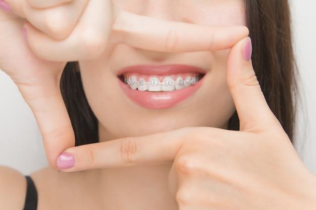 Aparat ortodontyczny w ustach szczęśliwej kobiety przez ramę. wsporniki na zęby po wybielaniu. wsporniki samoligaturujące z metalowymi opaskami i szarymi gumkami lub gumkami dla idealnego uśmiechu
