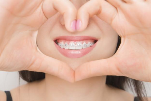 Aparat ortodontyczny w ustach szczęśliwej kobiety przez serce. wsporniki na zęby po wybielaniu. wsporniki samoligaturujące z metalowymi opaskami i szarymi gumkami lub gumkami dla idealnego uśmiechu