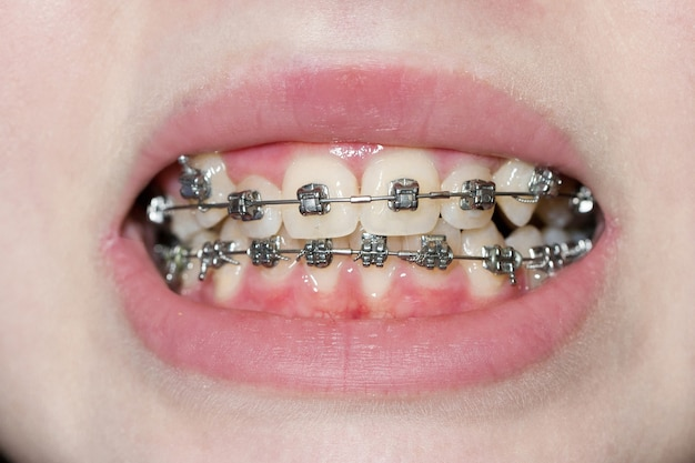 Aparat ortodontyczny zbliżenie makro