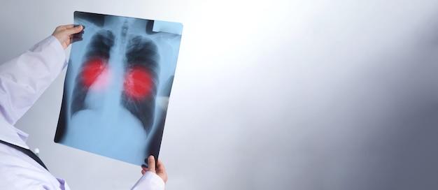 Azjatycka lekarka w średnim wieku stojąca i trzymająca film rentgenowski lub radiografię, na którą patrzy