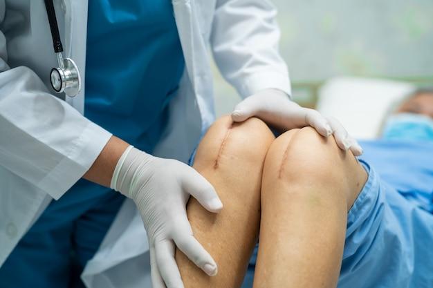Azjatycka pacjentka w podeszłym wieku lub starsza kobieta pokazuje swoje blizny po operacji całkowitej wymiany stawu kolanowego.