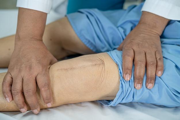 Azjatycka starsza pacjentka pokazuje swoje blizny po chirurgicznej całkowitej wymianie stawu kolanowego