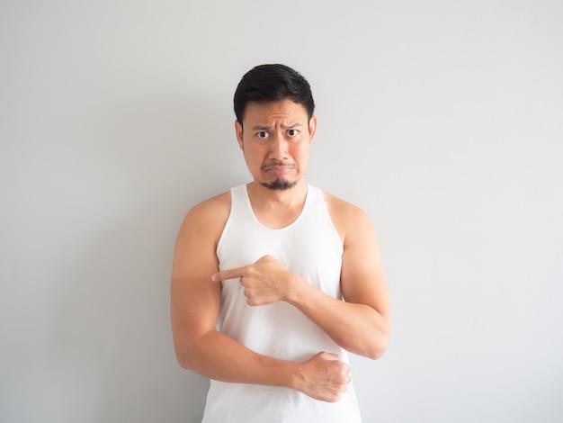 Azjatycki człowiek dostaje poparzenie słoneczne na ramieniu.