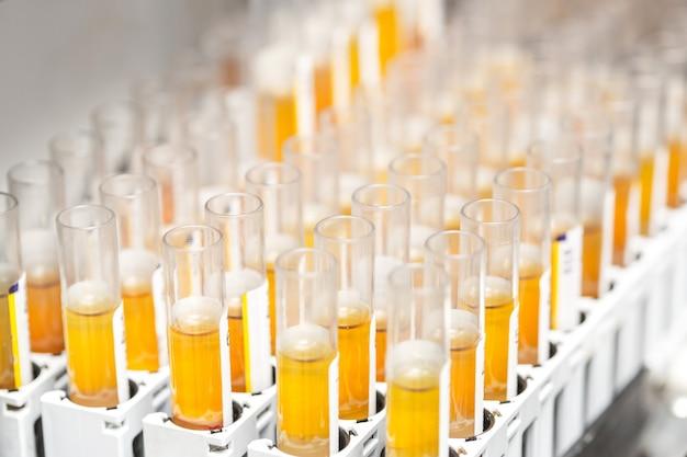 Badania w probówkach laboratoryjnych