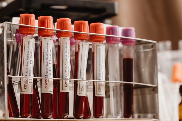 Badanie krwi covid-19 w probówce, próbka badania krwi w celu zdiagnozowania nowego zakażenia koronawirusem (nowa choroba koronawirusowa 2019)