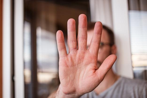Bardzo suchy peeling do rąk z powodu prania alkoholu