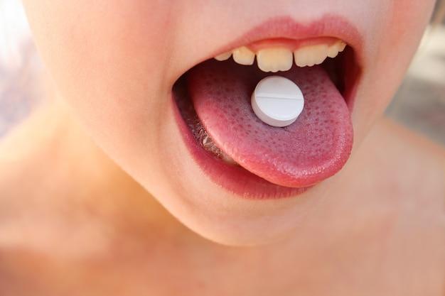 Biała pigułka na języku dziecka