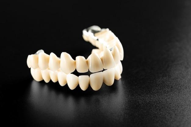Białe zęby ceramiczne na białym tle