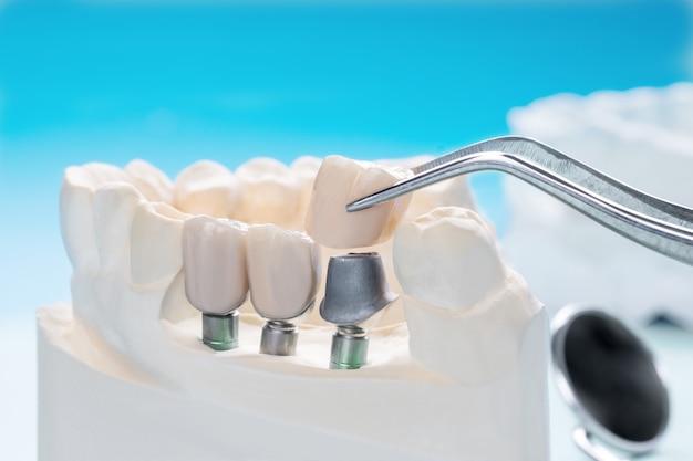 Bliska implan model wsparcia zębów napraw implant mostu i koronę.