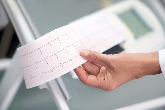 Bliska lekarzy ręka trzyma wynik elektrokardiogramu