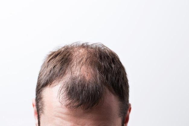 Bliska łysiejąca głowa młodego człowieka