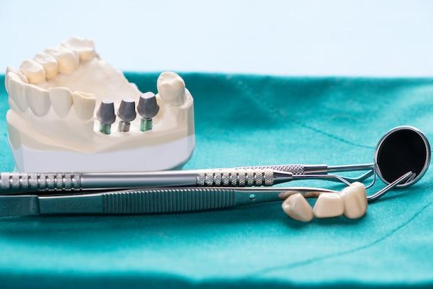 Bliska model implantu podparcie zęba naprawić implant mostowy i koronę.