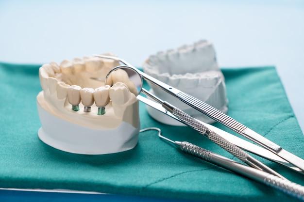 Bliska podpórka do modelu implantu napraw implant mostowy i koronę.