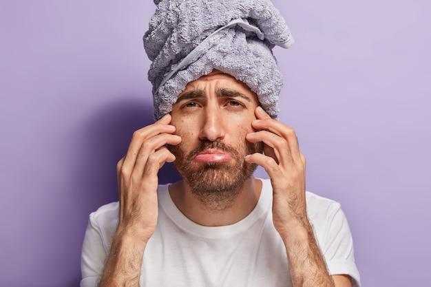 Bliska strzał niezadowolonego mężczyzny dotyka twarzy, ma złe uczucia po zabiegach spa, nosi ręcznik na głowie