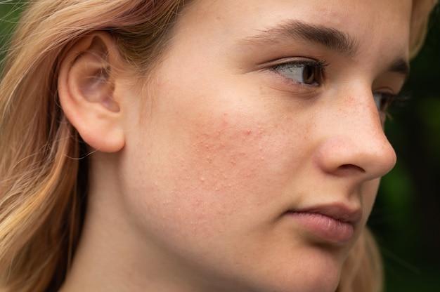 Bliska twarz młodej dziewczyny z problemami skórnymi