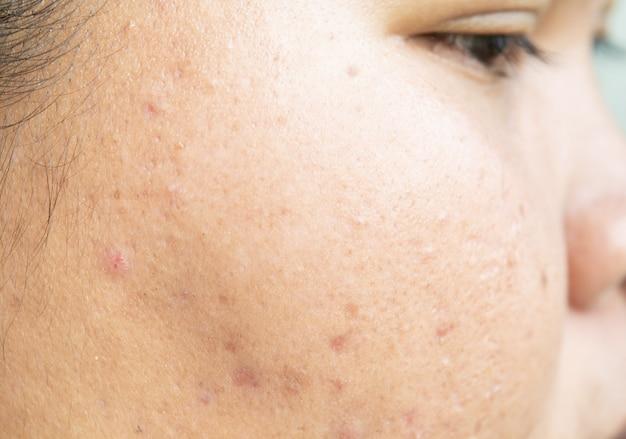 Blizny od trądziku na twarzy i problemy ze skórą i pory u nastolatków