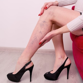 Bolesne żylaki i pajączki na nogach kobiet. kobieta masuje zmęczoną nogę w biurze.