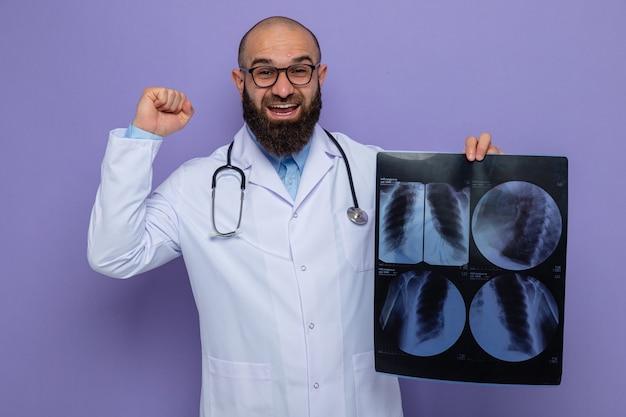 Brodaty mężczyzna lekarz w białym fartuchu ze stetoskopem na szyi w okularach trzymających rentgen, wyglądający na szczęśliwego i podekscytowanego podnoszącą pięść jak zwycięzca