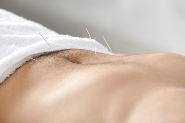 Brzuch mężczyzny z igłami. koncepcja akupunktury