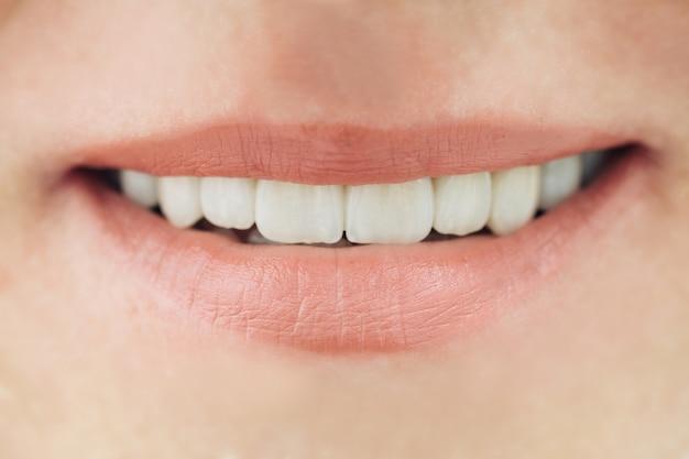 Ceramiczne korony makro zbliżenie ludzkich zębów. pojęcie stomatologii estetycznej.
