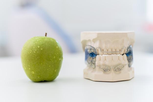 Ceramiczne szczęki z zapięciem leżą na stole z jabłkiem